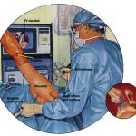 artrospalla